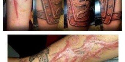 tatuajes para cubrir cicatrices fotos